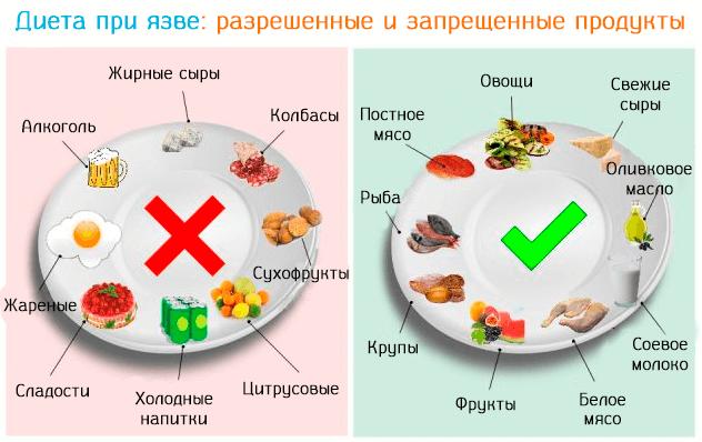 Язвенная болезнь диета