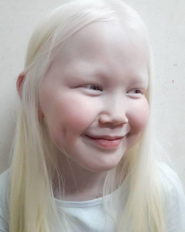 альбинизм