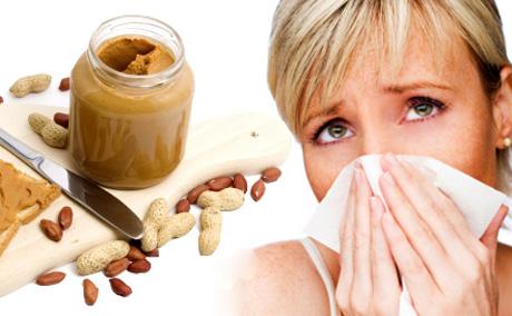 алиментарная аллергия