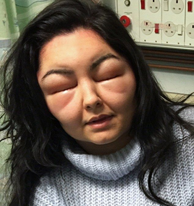 аллергия на краску