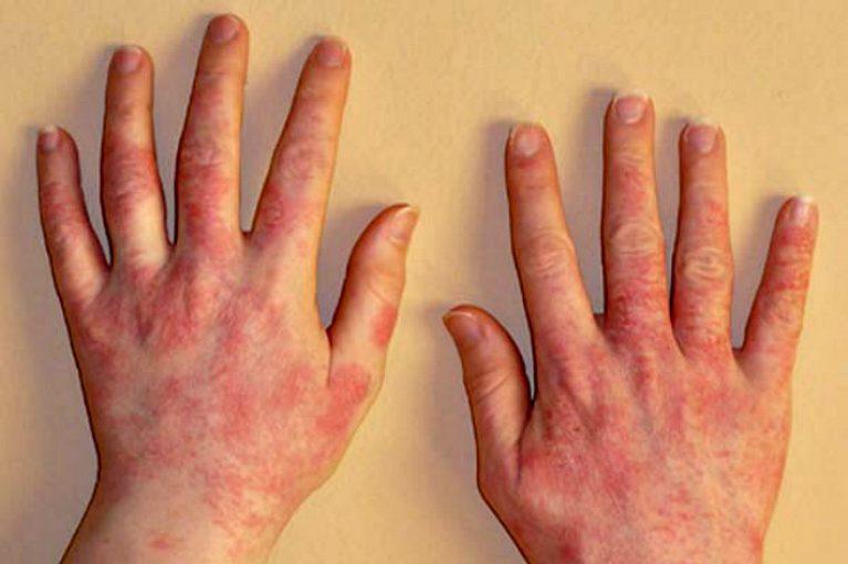 аллергия на латекс