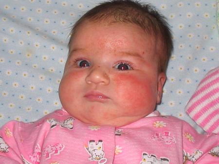 аллергия новорожденных