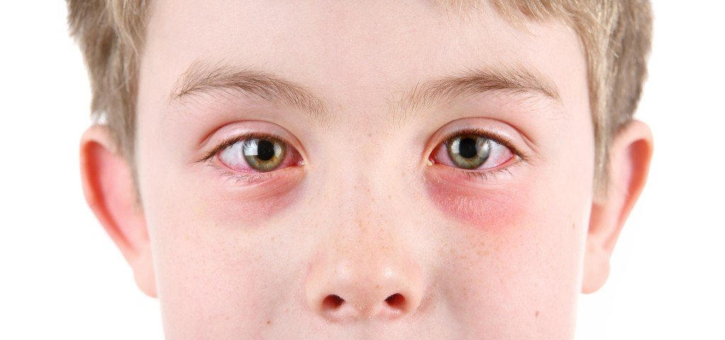 аллергический коньюктевит