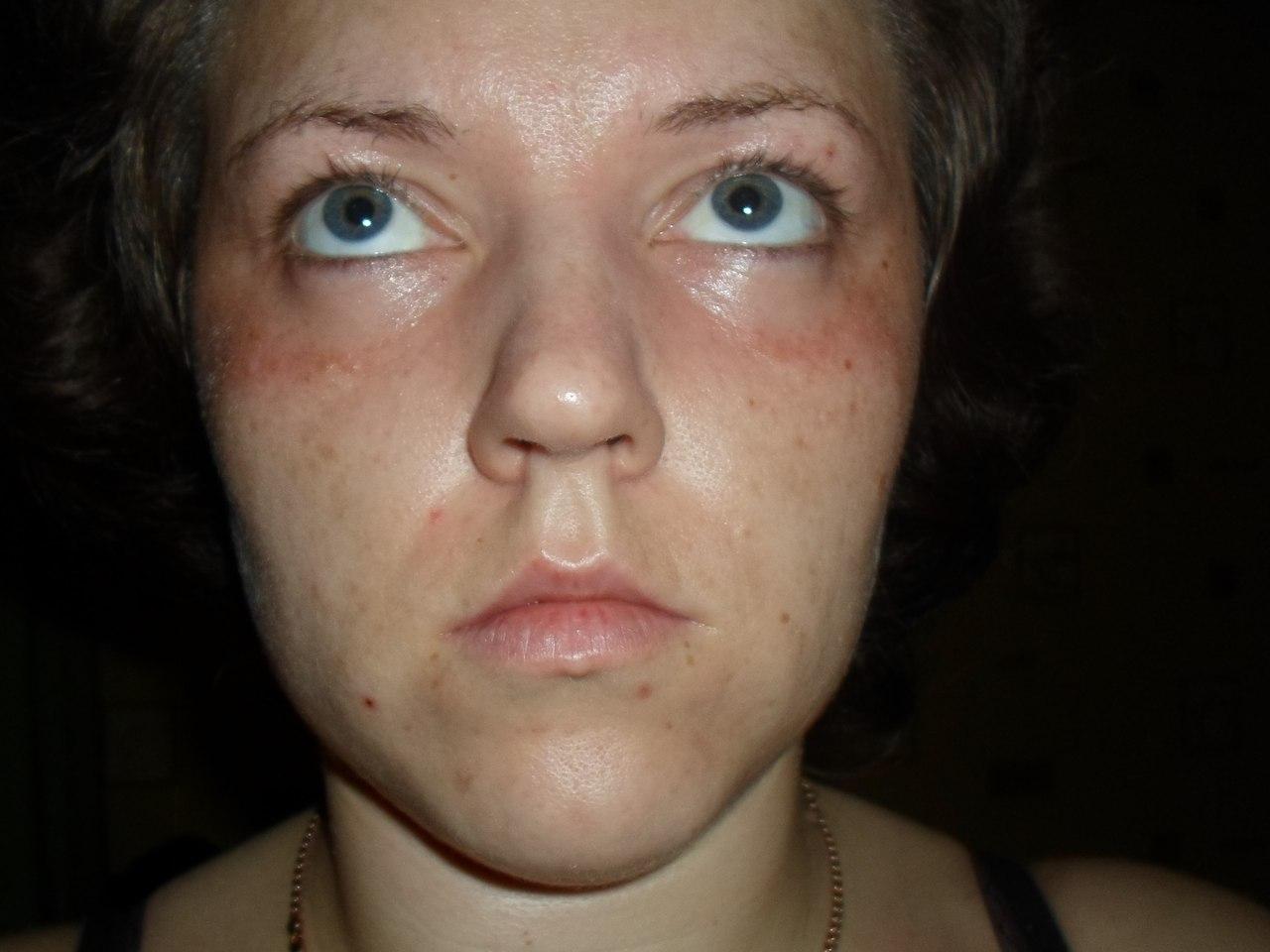 allergiya-na-spermu-foto