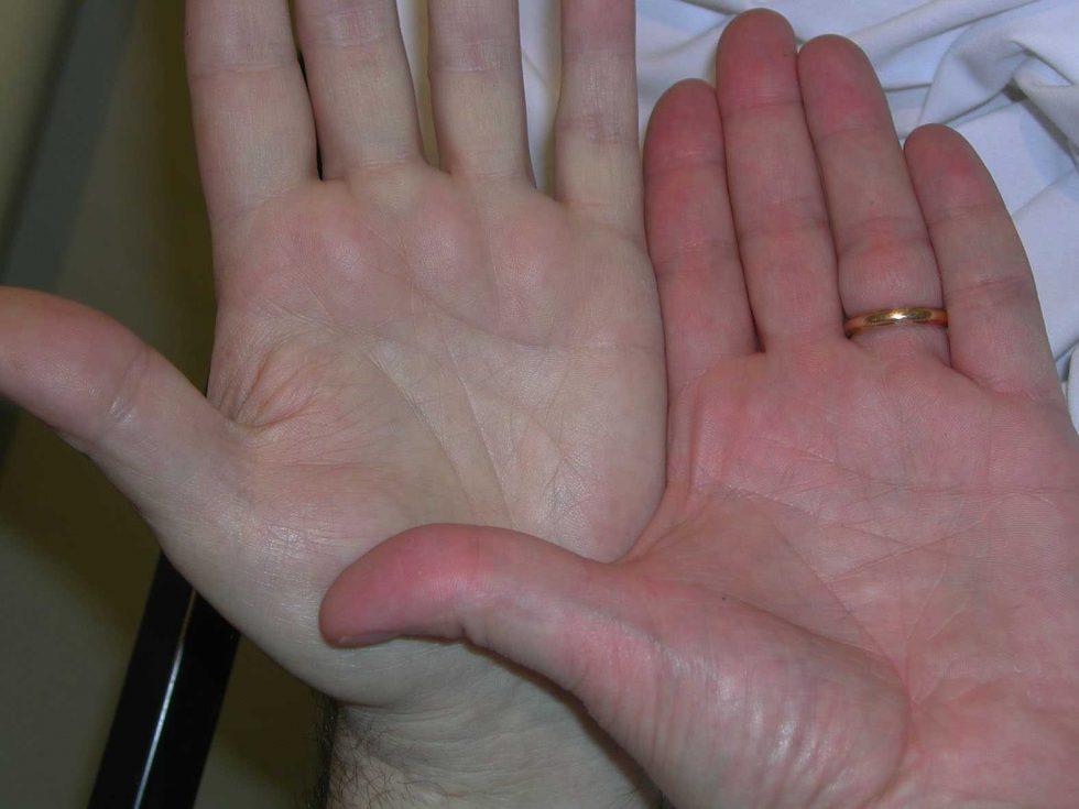 анемия руки