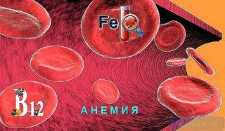 anemiya-ahloridnaya-1