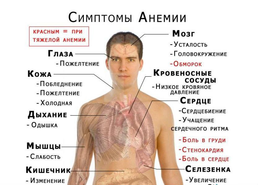 Анемия алиментарная