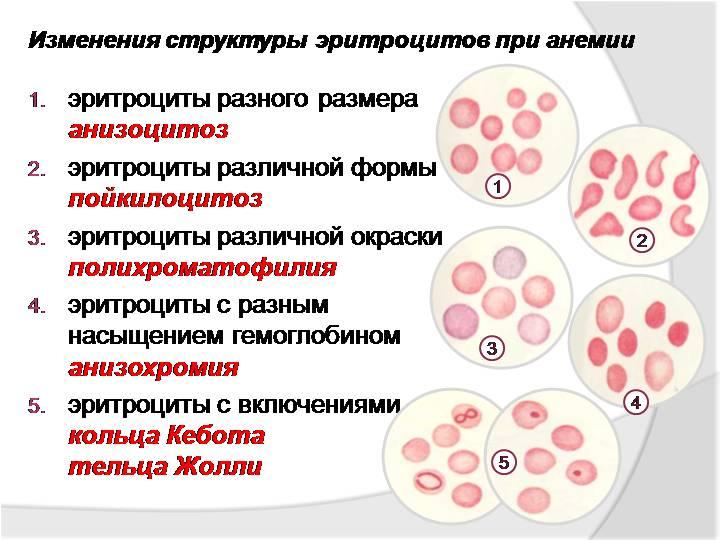 Анизоцитоз