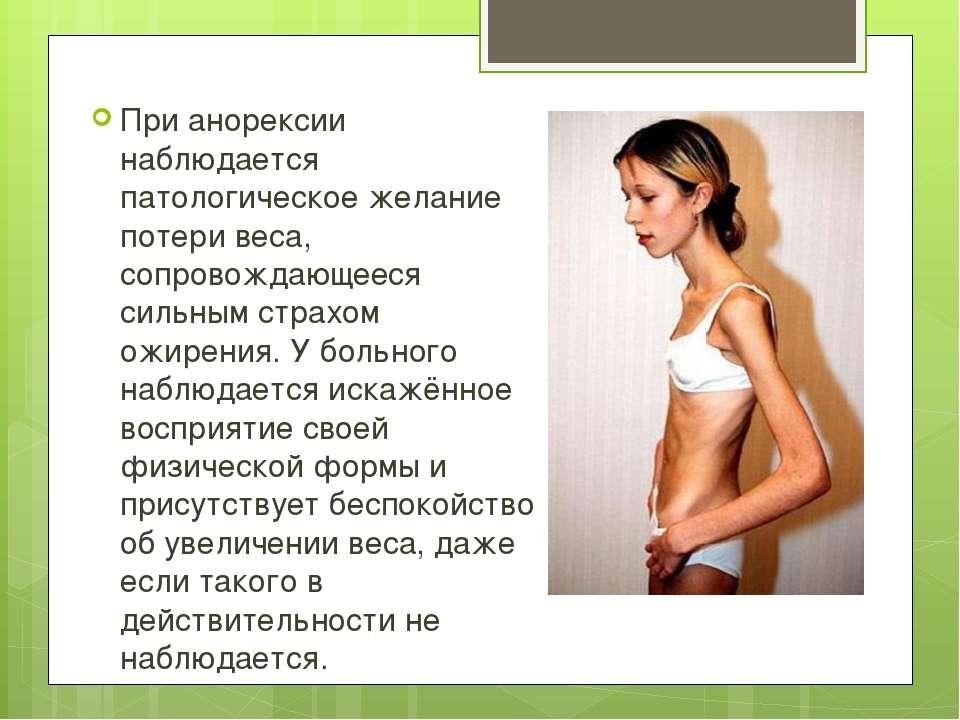 Анорексия диета как похудеть