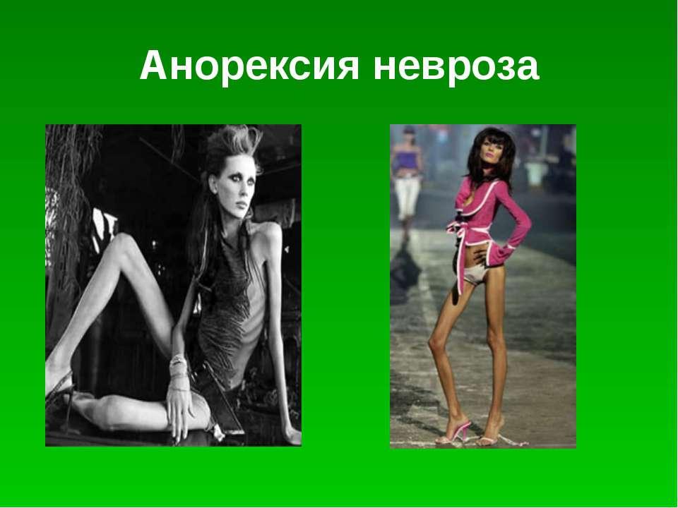 Анорексия психическая