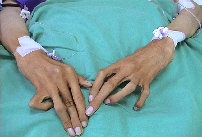 Арахнодактилия