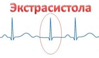 aritmiya-ekstrosistolicheskaya-1