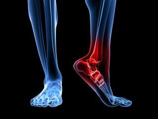 artrit-dizenteriyniy-1