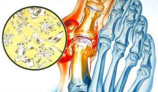artrit-mochekisliy-2