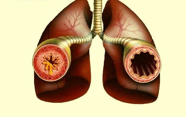 астма бронхиальная
