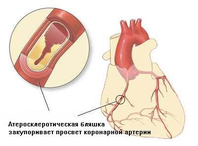 Атеросклеротическая болезнь сердца