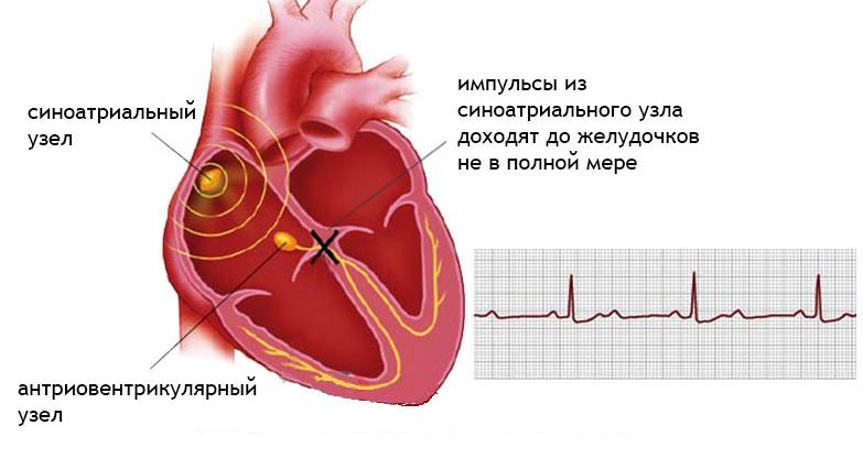 Блокада сердца