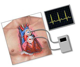 Блокада сердца - типы и терапия