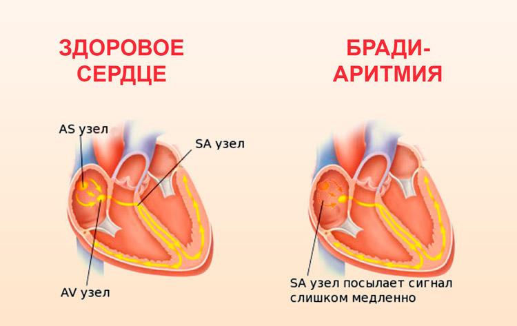 Брадиаритмия