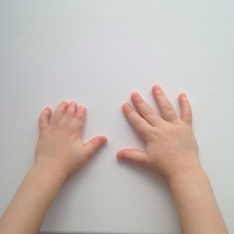 Брахидактилия