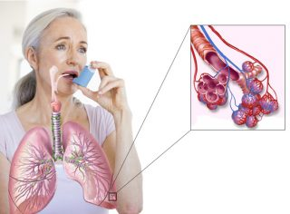 bronhialnaya-astma-1