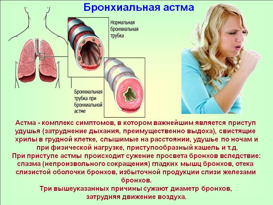 Что такое астма бронхиальная