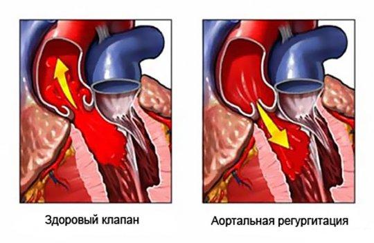 Декомпенсация сердца