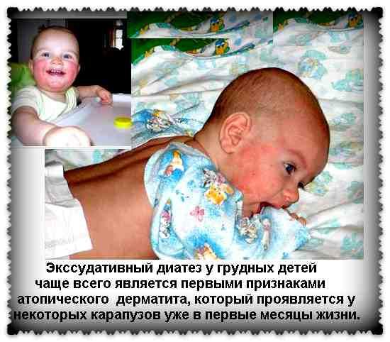 младенец с диатезом
