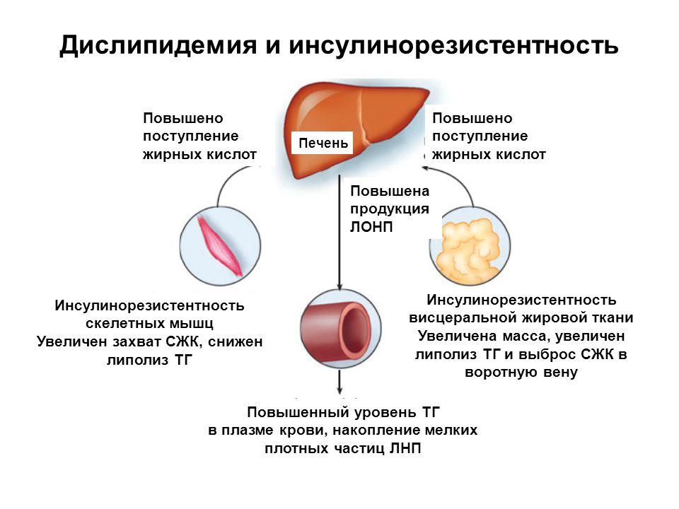 Дислипидемия