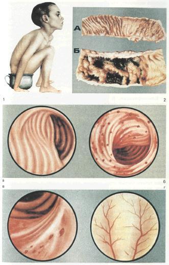Дизентерия бактериальная
