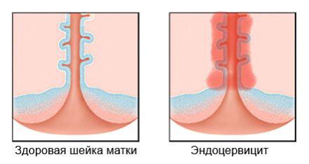 Экзоцервицит