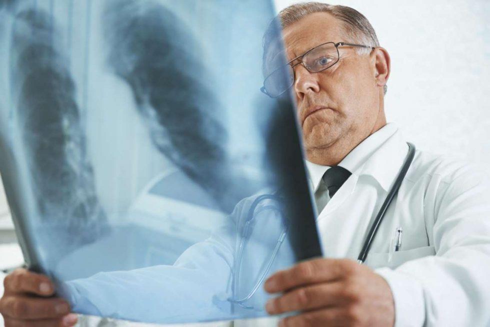 Эозинофильная пневмония