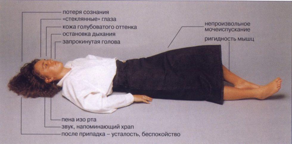 Эпилепсия криптогенная