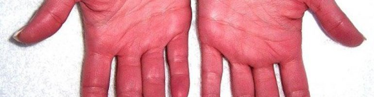 Эритремия