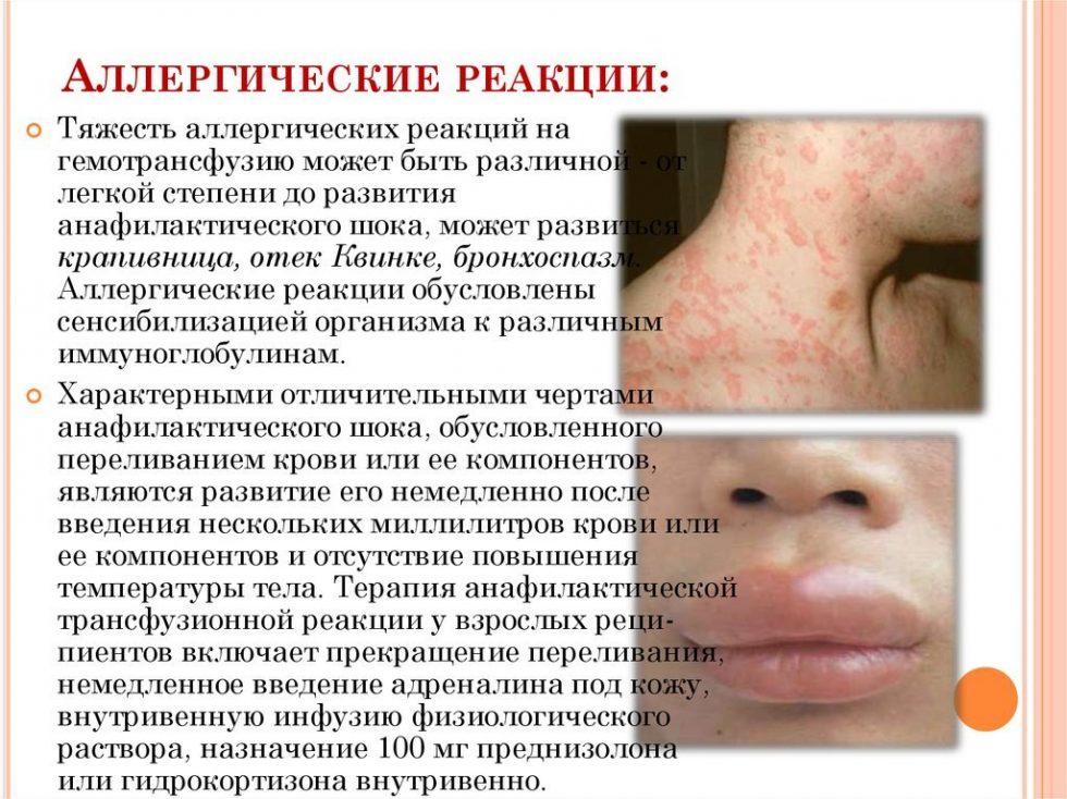 аллергия описание
