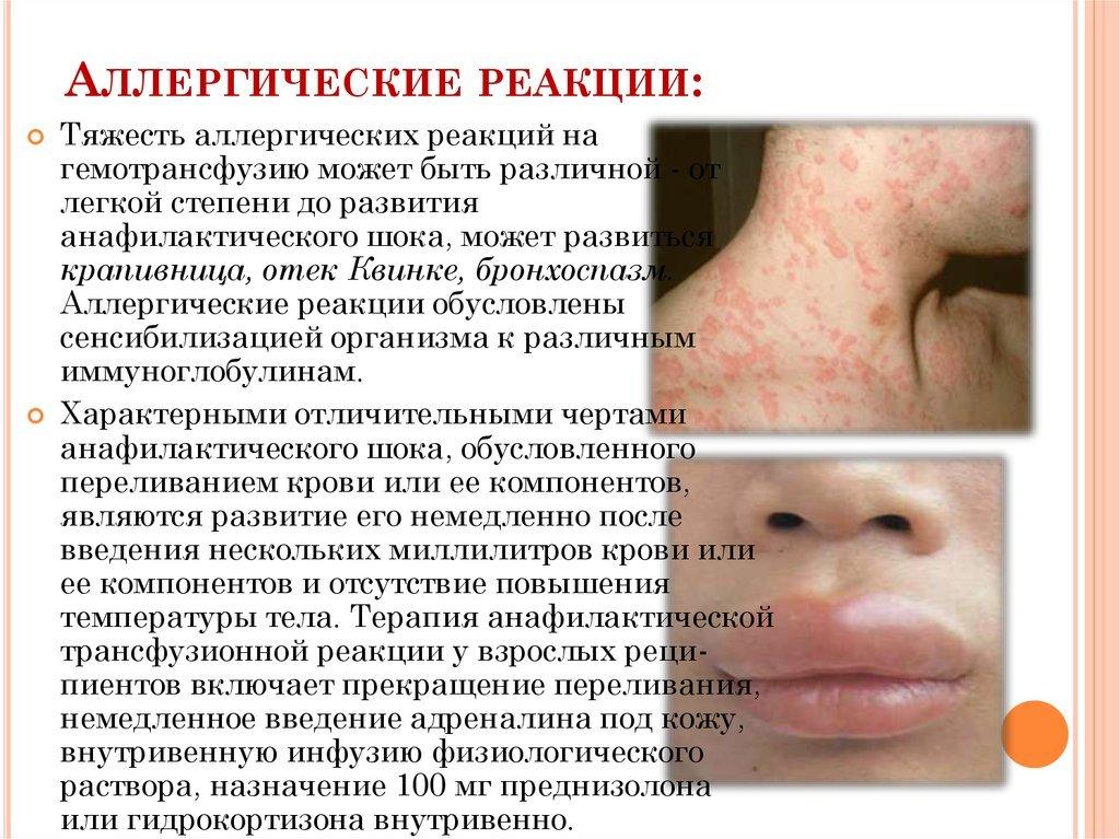Консультация врачей  Аллергияобщие вопросы