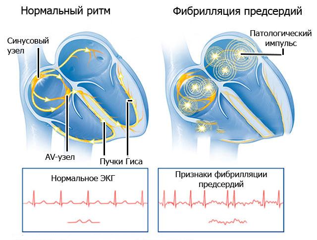фибрилляции сердца
