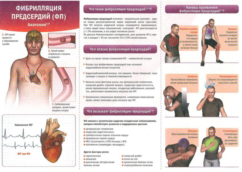 фибрилляции сердца профилактика