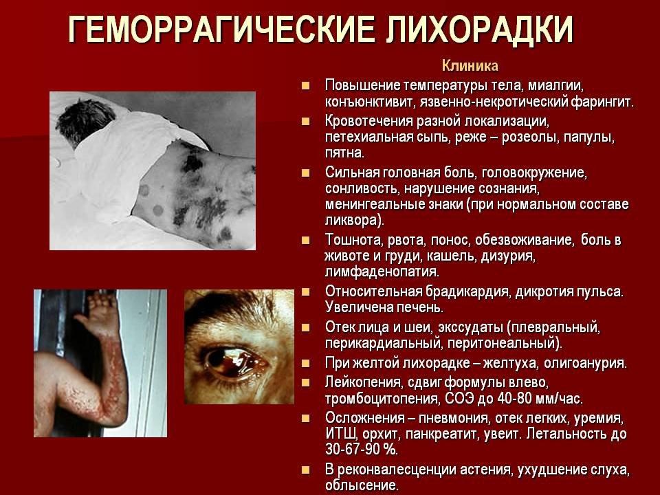 Геморрагическая болезнь