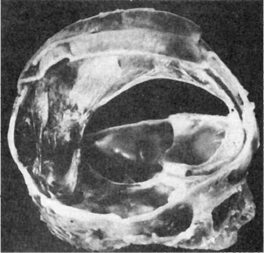 Геморрагический нефрозонефрит