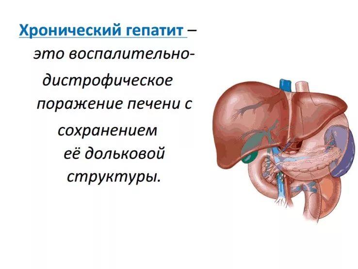 Гепатит хронический