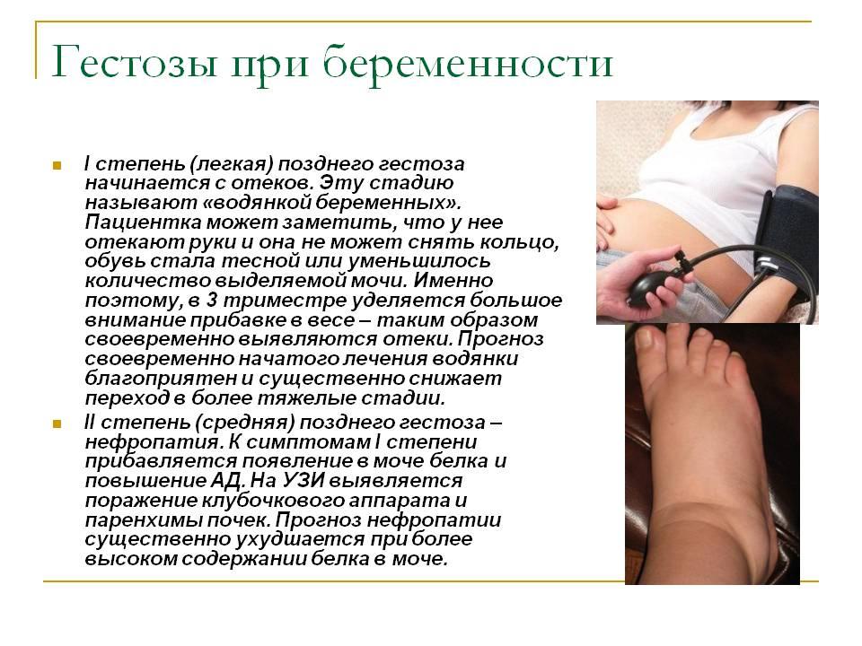 Поздний гестоз беременных симптомы 57