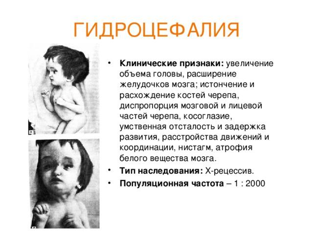 Гидроцефалия у детей