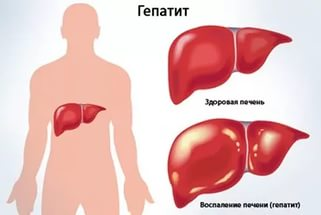 Гепатит острый