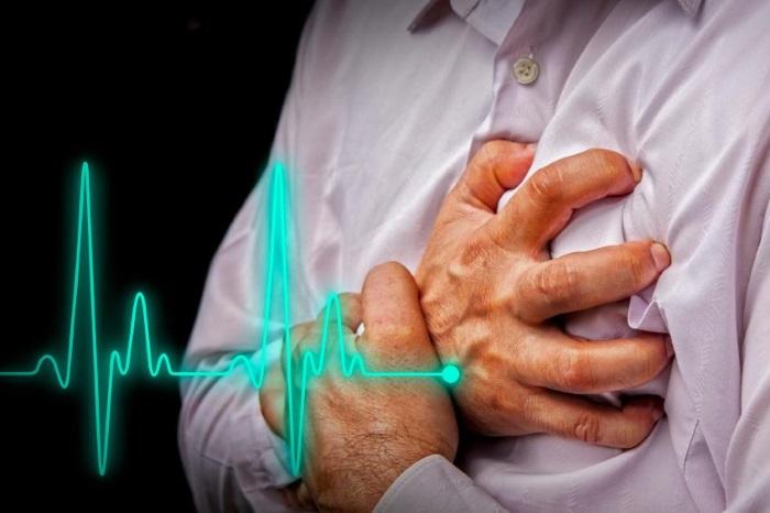Инфаркт сердца или инфаркт миокарда