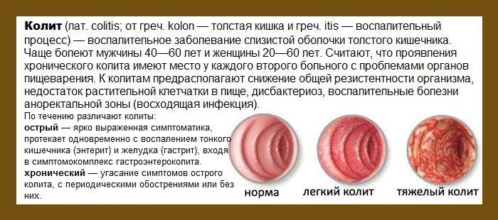 kolit-prichiny-klinika-metody-terapii