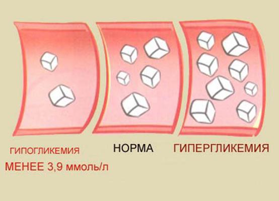 Кома гипогликемическая