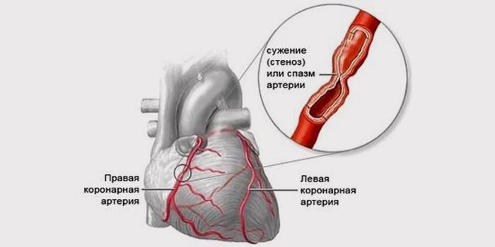 Коронаросклероз