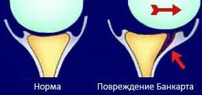 Лечение болезней плечевого сустава