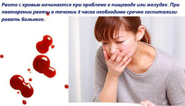Кровавая рвота
